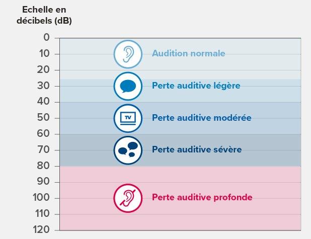 Les différents niveaux de perte auditive