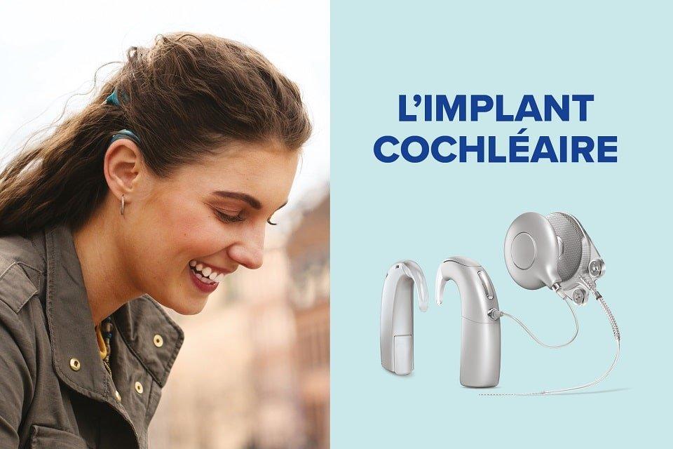 implant-auditif-cochlaire