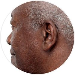 Prothèse auditive intra-auriculaire de type Audipuce.