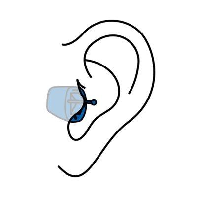 Appareil auditif invisible CIC