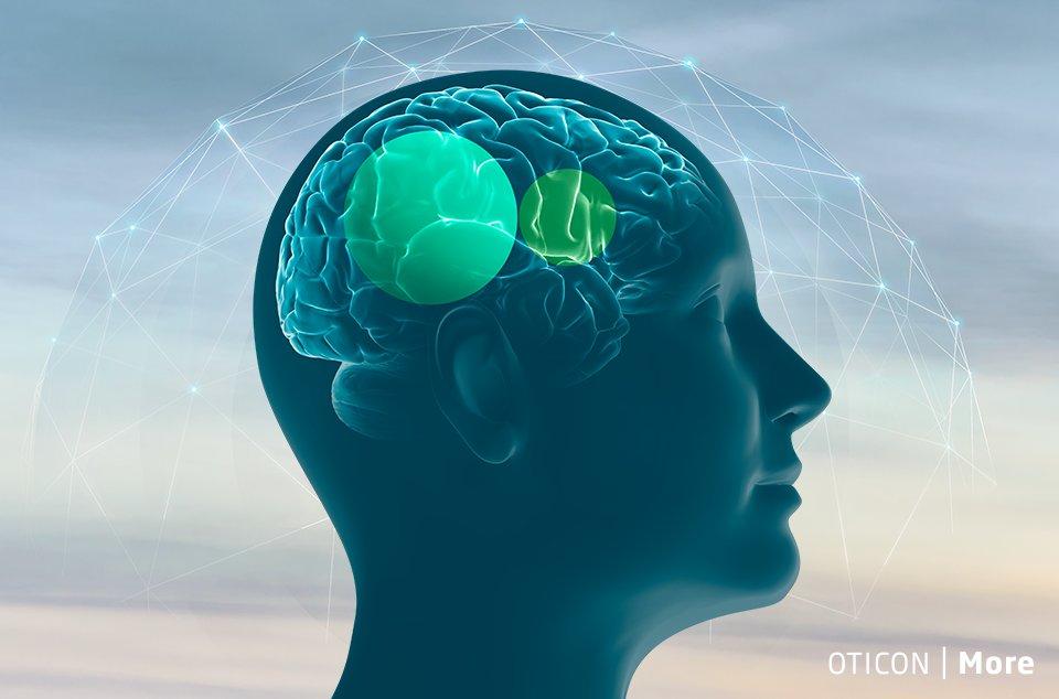 oticon-more_brainhearing