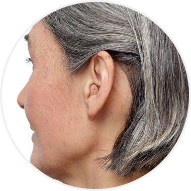 Appareil auditif CIC