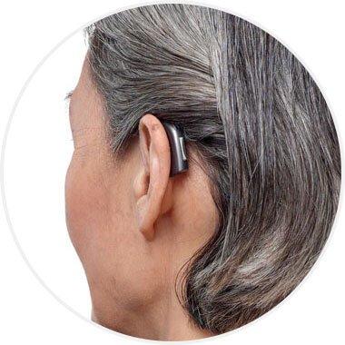 Appareil auditif contour d'oreille Audika