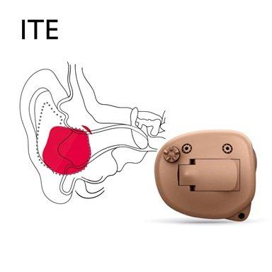 Bernafon Manufaktur ITE Im-Ohr Hörgerät