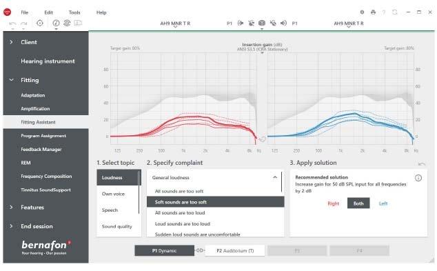 Skärm för monteringsassistenten i Bernafons Oasis Next -passande programvara