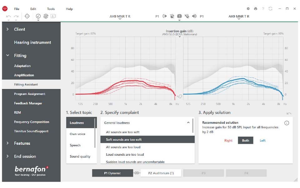Pantalla del Asistente de adaptación en el software de adaptación Oasis Next de Bernafon