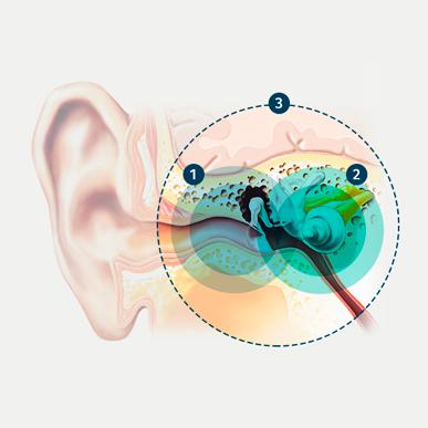 three-types-hearing-loss