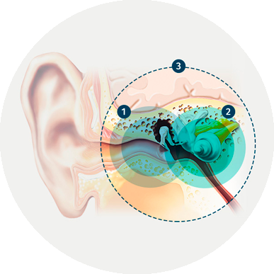 three-types-hearing-loss