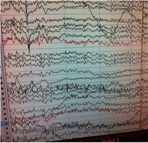 Cognition and Hearing - EEG data