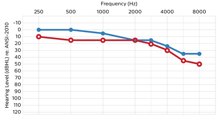 An audiogram showing hearing ability in terms of sound volume (or intensity) measured in decibels and frequency in Hertz