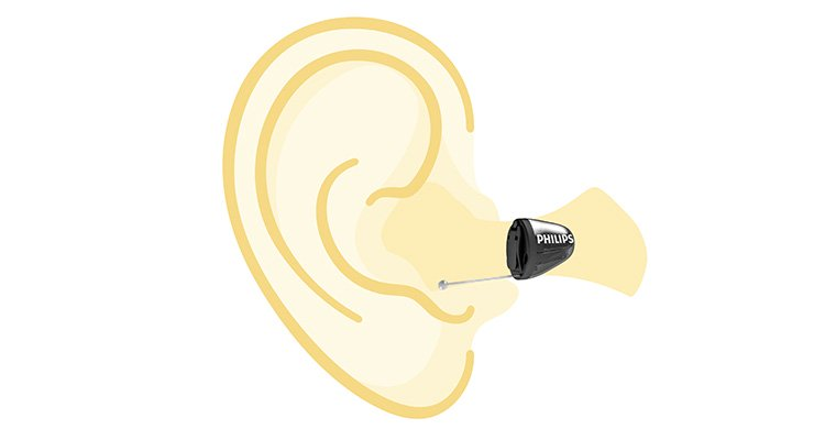 Drawing of an ear with a Philips HearLink in-the-ear hearing aid showing the exact positioning