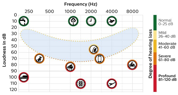 Chart with speech banana shows which sounds are heard at what frequency and loudness level, indicating degree of hearing loss