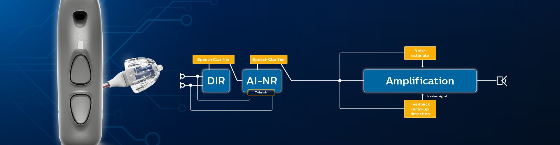 The architecture of SoundMap 2 technology – Philips HearLink hearing aids with AI sound technology.