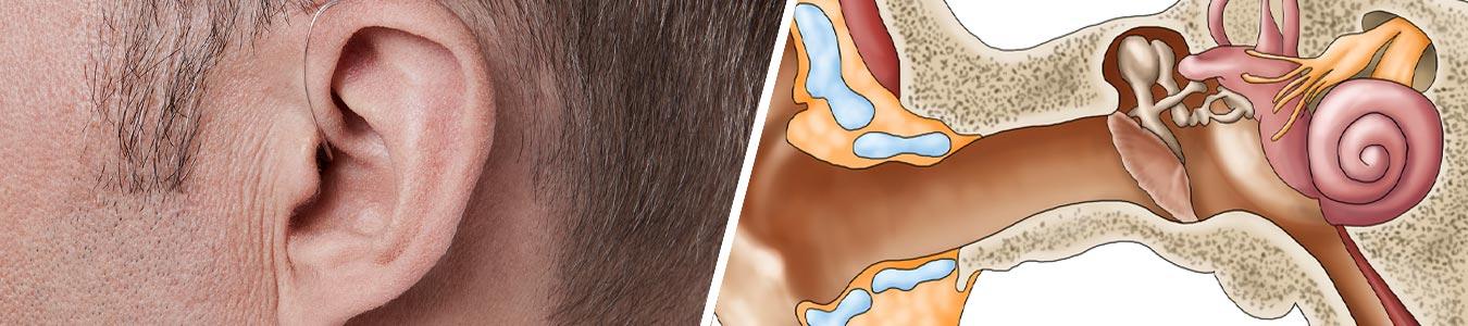 tinnitus-causes-ear-diagram-2