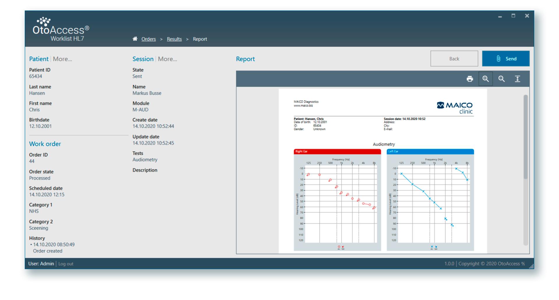OtoAccess Worklist HL7 Screenshot