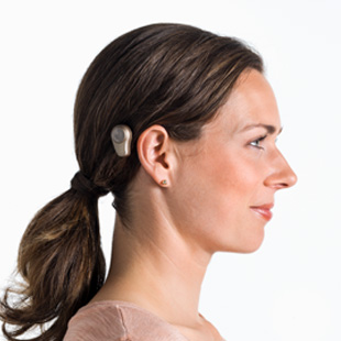 What is bone conduction - abutments