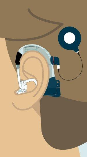 300x540-retention-ear-plug