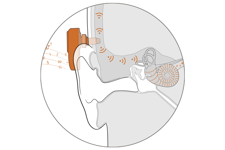 The Ponto system bypasses ear canal and middle ear problems