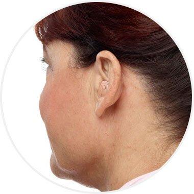 Aparaty słuchowe częściowo wypełniające małżowinę uszną (ITE HS)