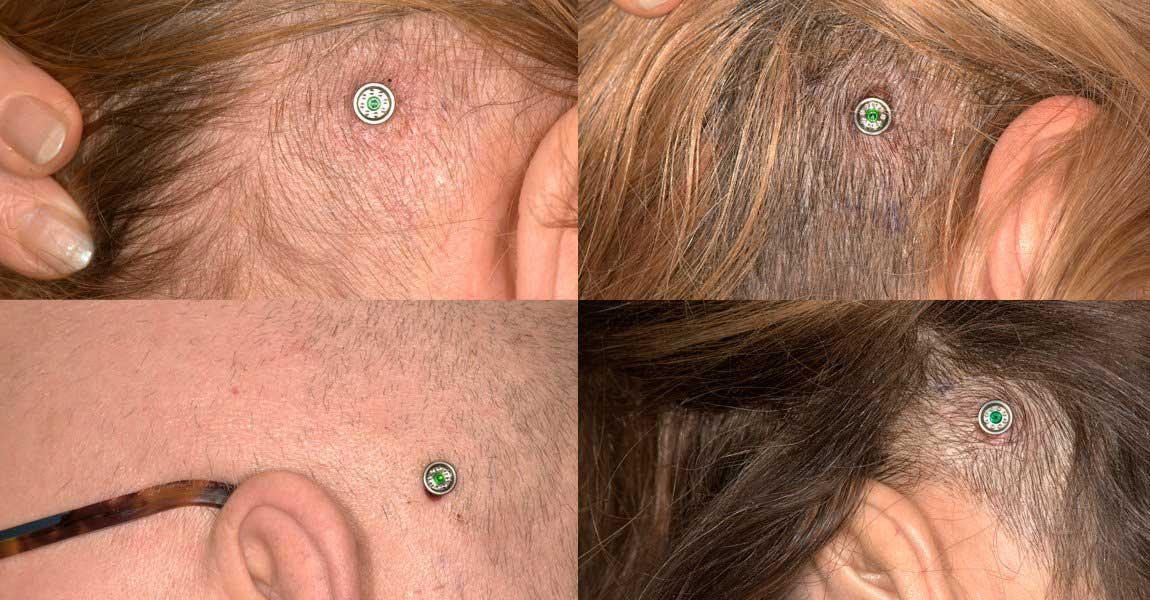 Ponto implants have been designed for tissue preservation