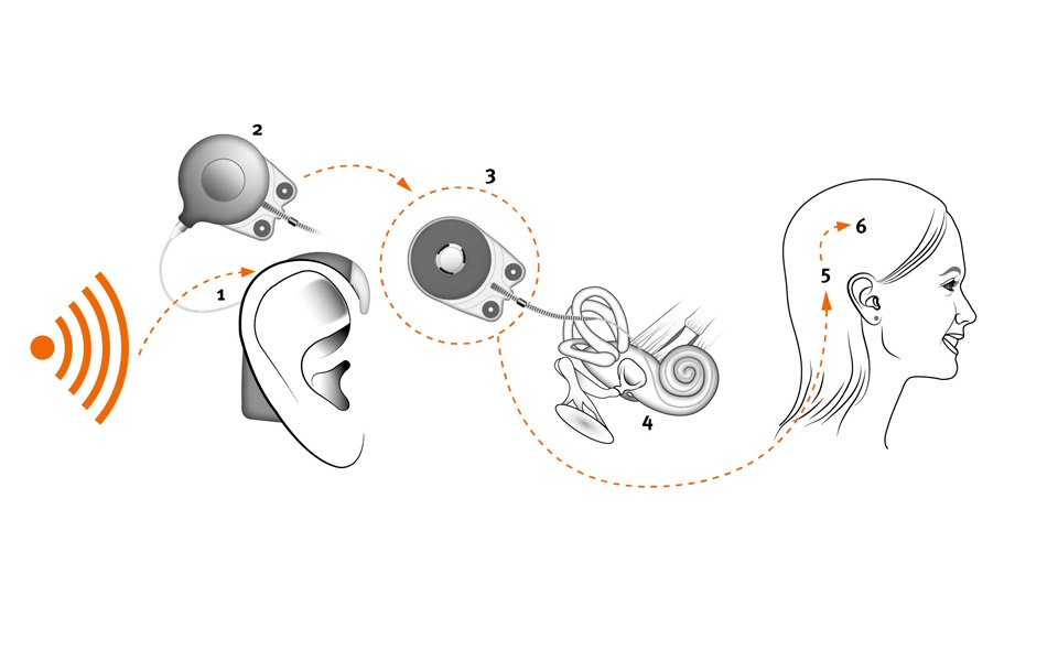 How does a cochlear implant work
