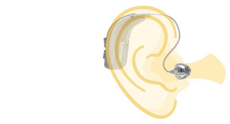 Dibujo de un oído con un audífono retroauricular Philips HearLink mostrando su posicionamiento exacto.