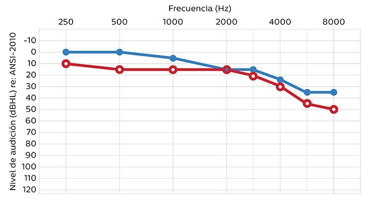 750x400_hearing_level_ansi-2010_mx