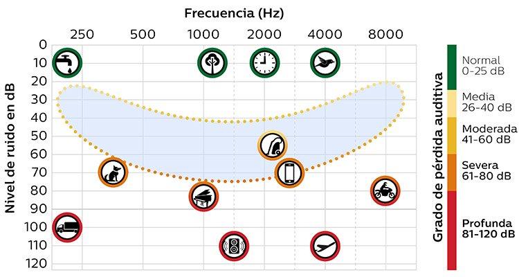750x400_speech_chart_01_mx