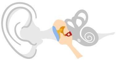 En el oído medio, el tímpano está conectado con los huesecillos del oído (también llamada cadena osicular) que amplifican y transmiten las vibraciones al oído interno
