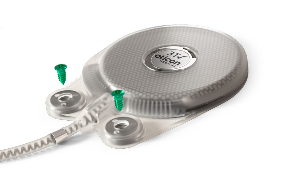 The Neuro Zti implant is a future-proof design for simple and safe surgery