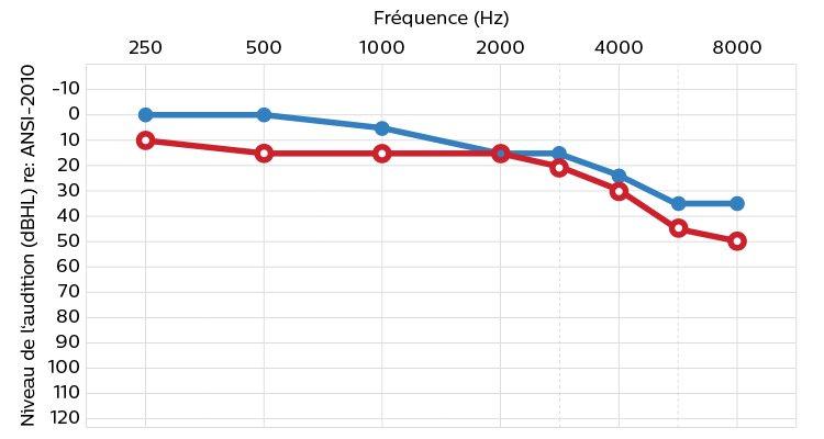 Un audiogramme indiquant la capacité auditive en termes de volume ou d'intensité sonore, mesurée en décibels et la fréquence mesurée en Hertz