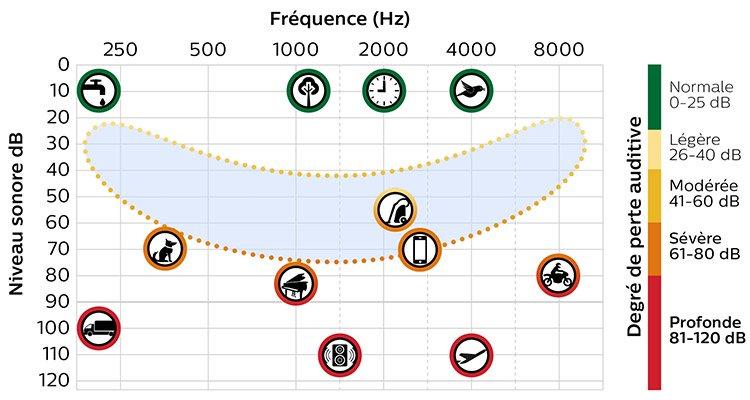 Tableau représentant la banane de la parole, qui montre quels sons sont entendus, à quelle fréquence et quelle intensité, indiquant ainsi le degré de perte auditive