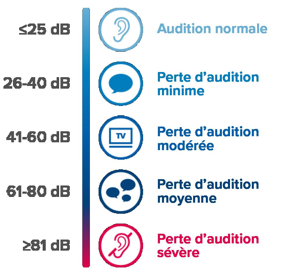 hearing-level-graph2-fr