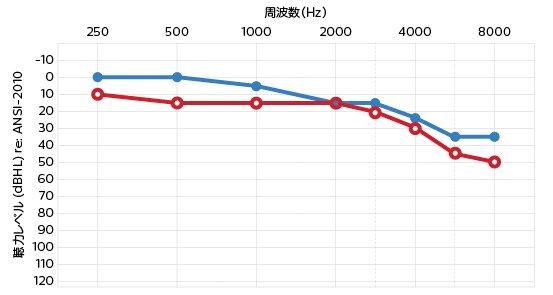 hearing_level_ansi-2010_375_200_jp