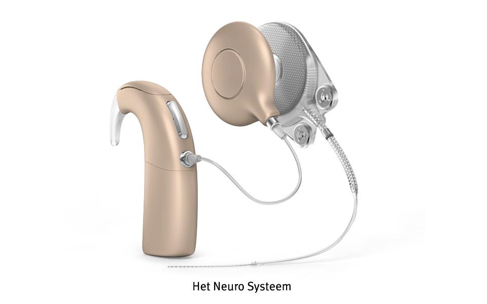 960x600-neuro-system-n2-nl