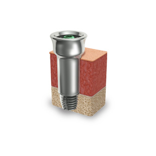 Ponto abutments and tissue preservation surgery improve patient outcomes