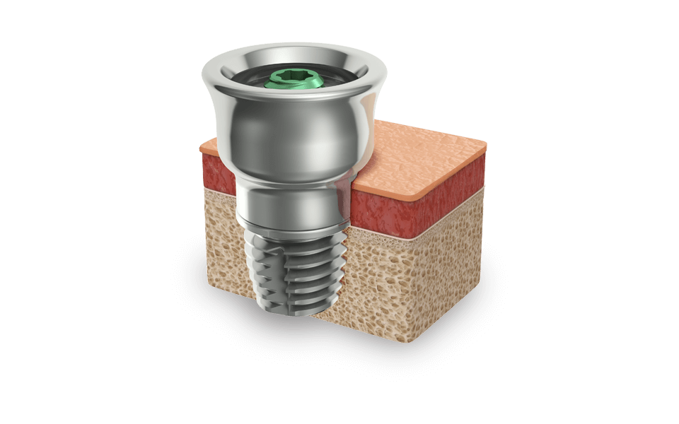 The Ponto implant system is based on the Brånemark principle of osseointegration in which titanium  implants merge with human bone.