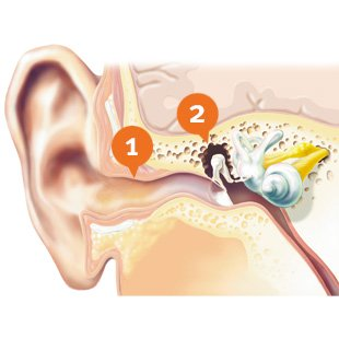 How does conductive hearing loss look like