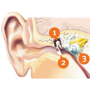 How does mixed hearing loss look like