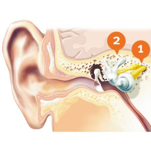 How does sensorineural hearing loss look like