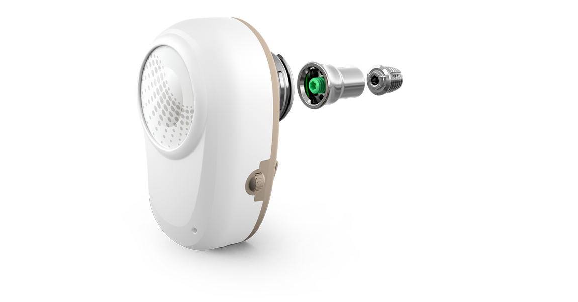 The Ponto implant system has a pure medical-grade titanium surface, which has been proven for bone anchored hearing surgery.